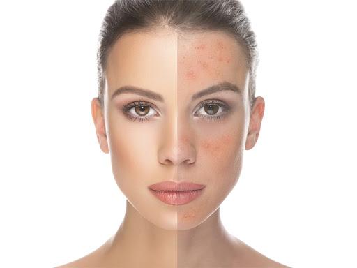 Microneedling: rigenera la pelle del viso
