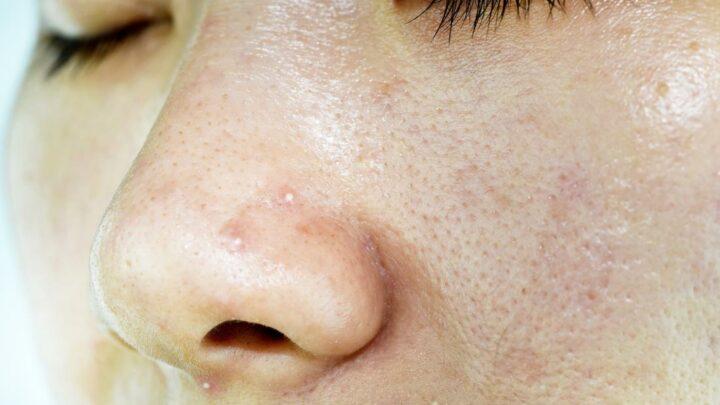 Come idratare una pelle acneica?