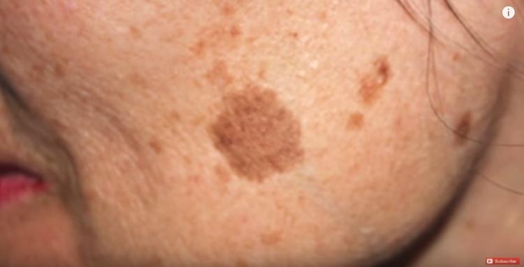 Macchie sulla pelle: prevenzione e rimedi