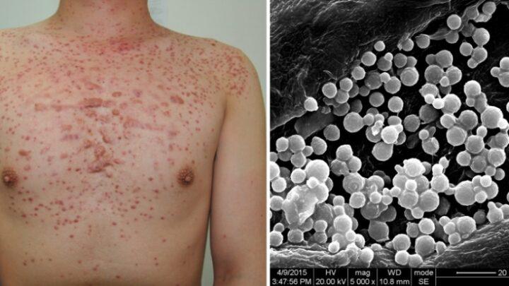 Follicolite da depilazione: come prevenirla e rimedi