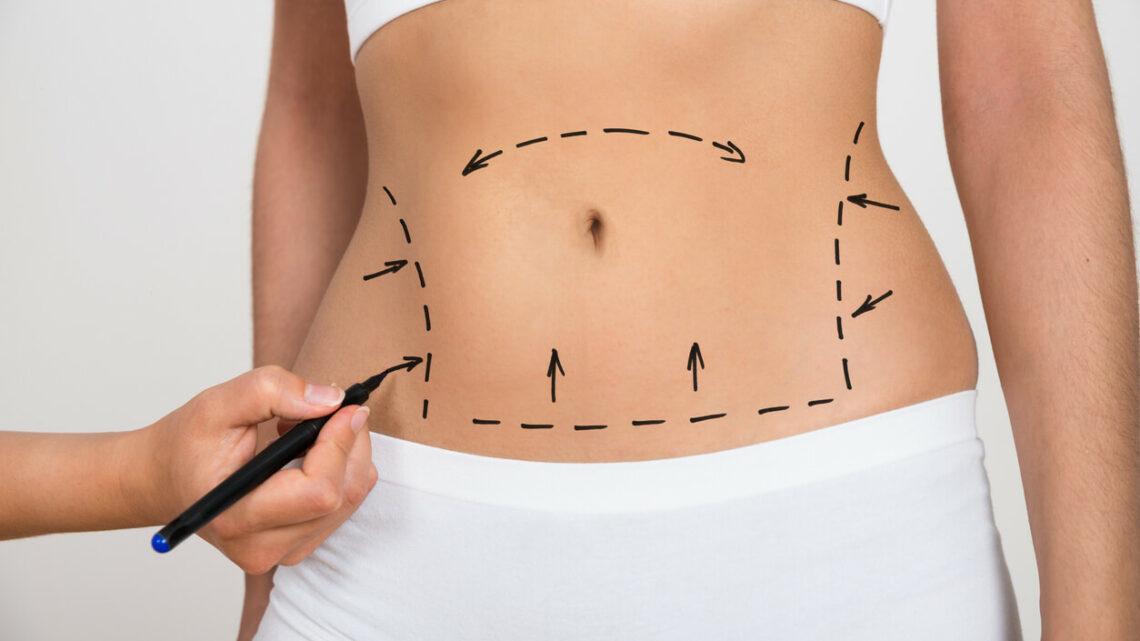 Liposuzione: in cosa consiste?